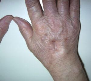 らびっとクリニック院長の医療雑話両手の甲がパンパンに腫れる関節炎(リウマチ疾患ミニ講座③)